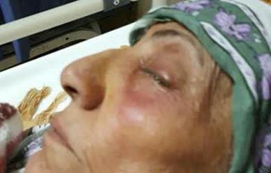 چشم تبعه عراقی در تراژدی چشمپزشکی کور شد